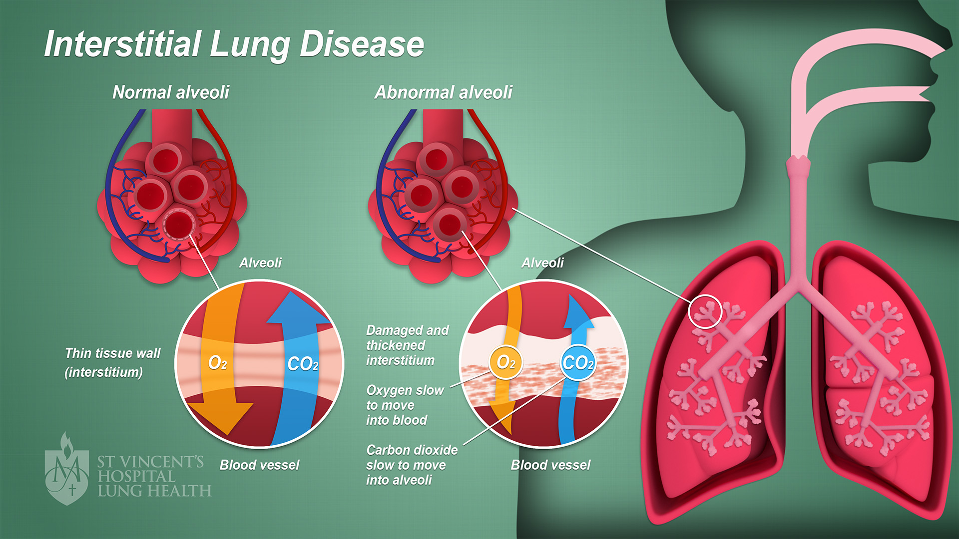 2_SVH_Lung_Health_Interstitial_Lung_Disease_final_1080