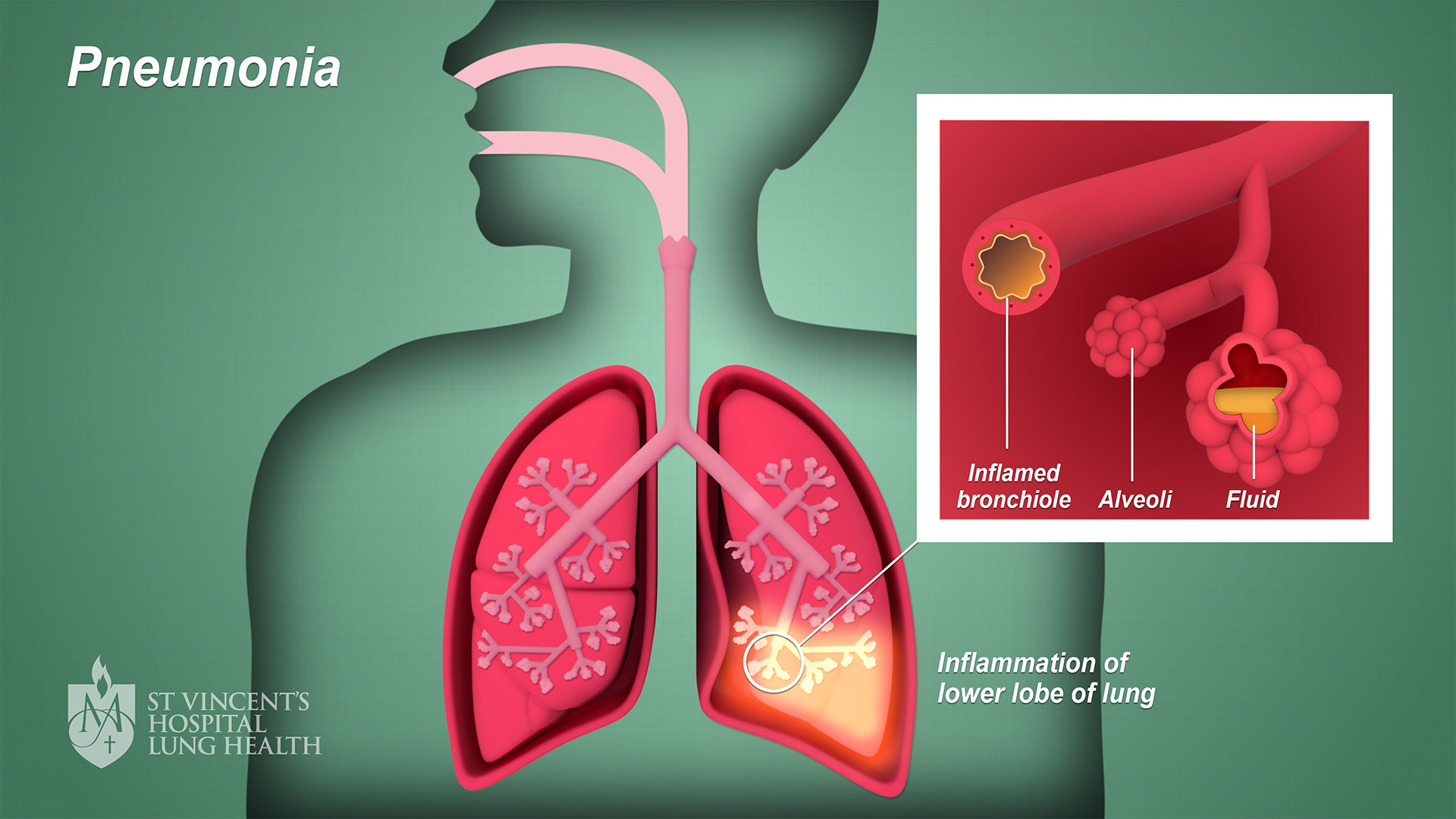 4_SVH_Lung_Health_Pneumonia_final_1080p
