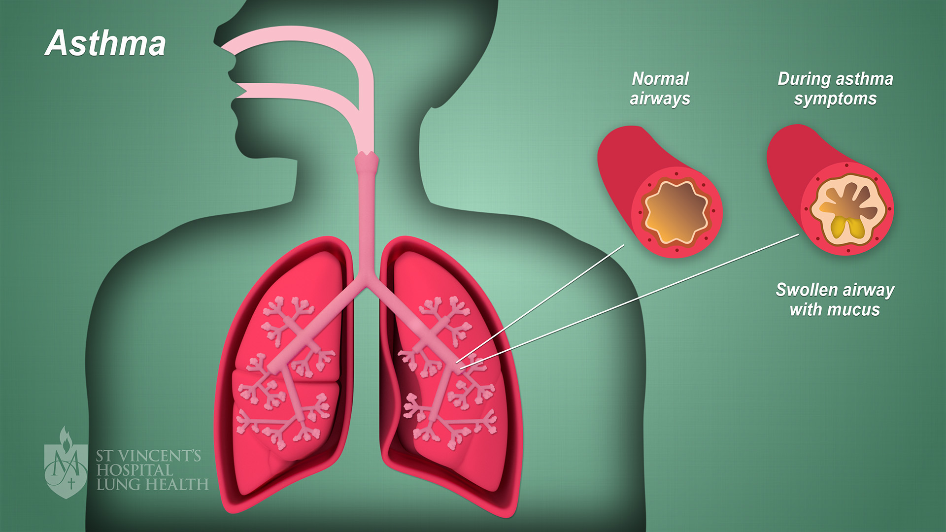 9_SVH_Lung_Health_Asthma_final_1080p