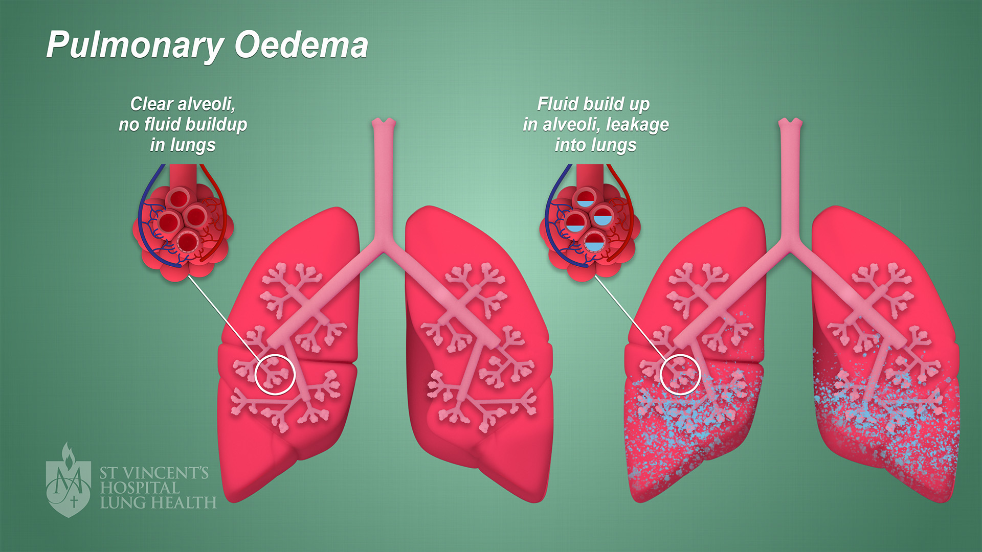 10_SVH_Lung_Health_Pulmonary_Oedema_final_1080p