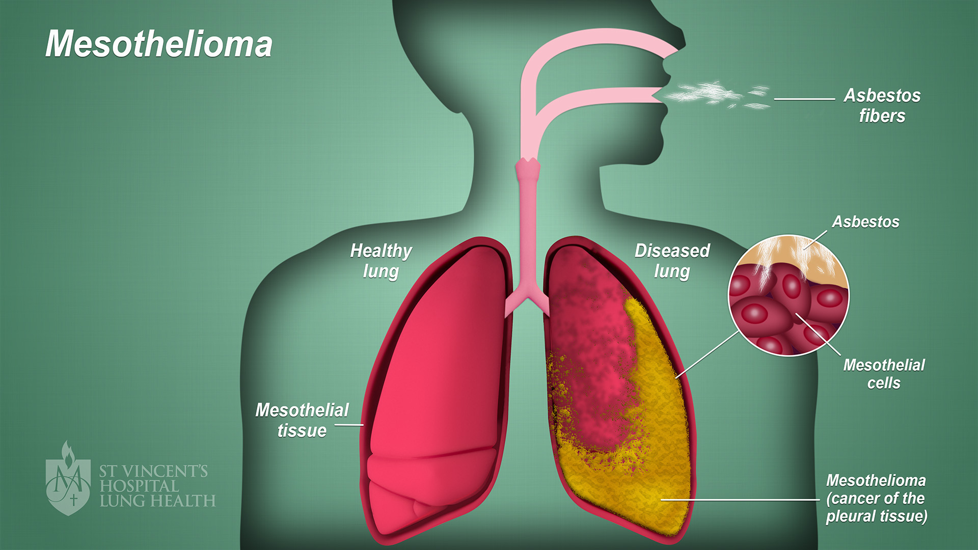 Mesothelioma St Vincent S Lung Health