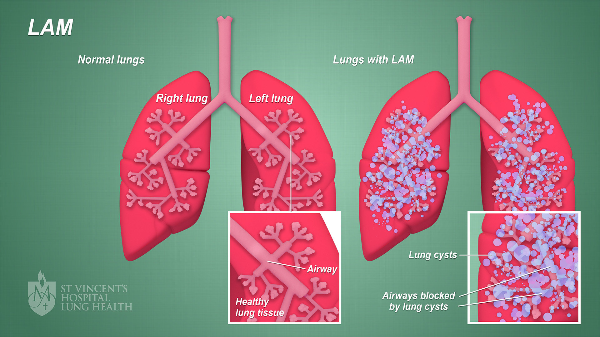 7_SVH_Lung_Health_LAM_final_1080p
